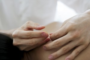 acupuncture_pcos_mark_chern